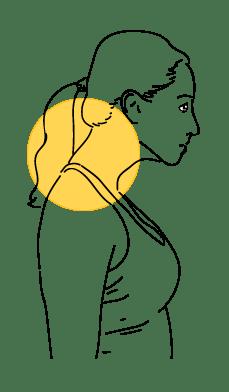 Forward neck